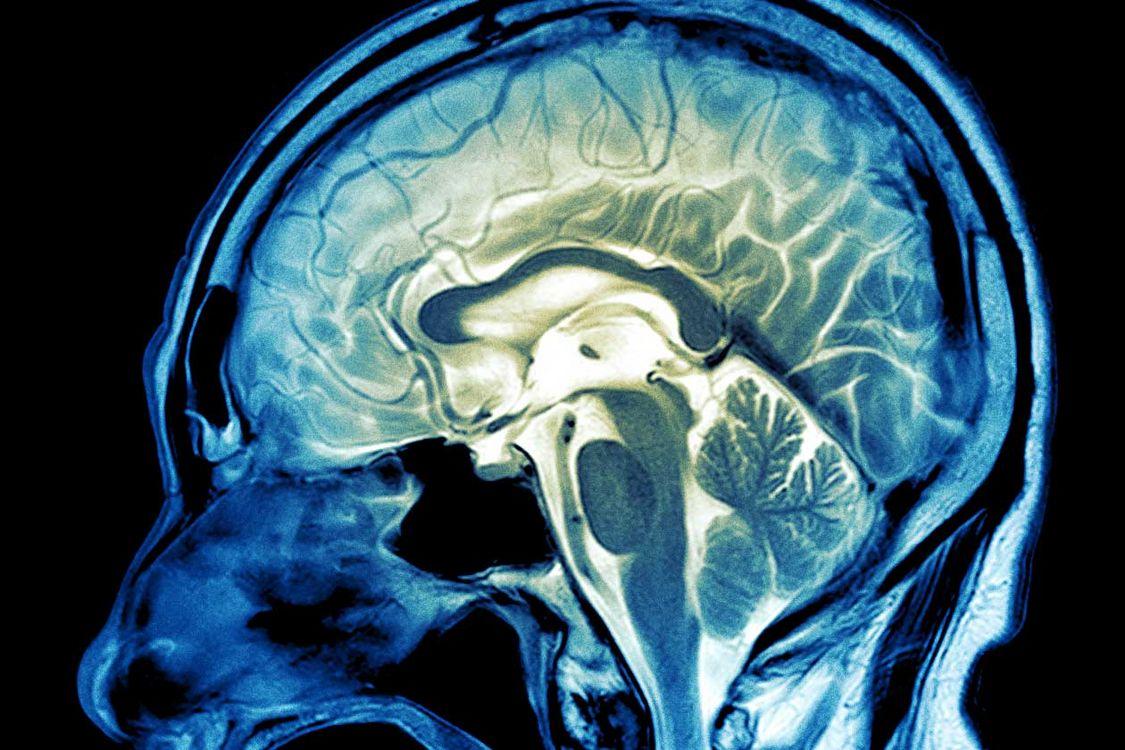 Cancer du cerveau et leucémie : de nouveaux mécanismes moléculaires ...