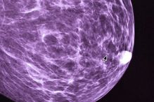 Mammography.