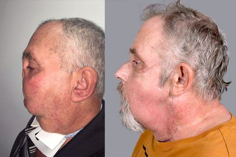 Seven years ago, the man was severely disfigured by an accidental gun shot. Four months after his transformative surgery, he is now doing well.
