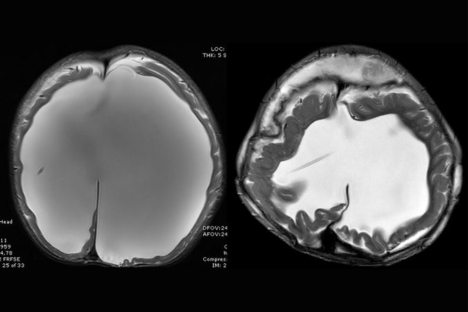 A before-and-after view of the patient's skull shows how remarkably its size and cerebrospinal fluid was reduced by surgery.