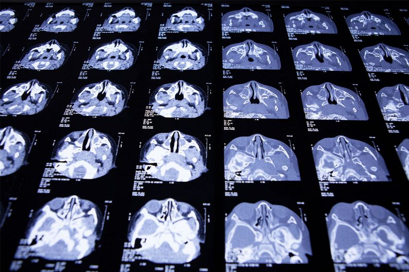 Artificial intelligence (AI) software can analyze medical images, and the practice will  become increasingly common, helping radiologists detect anomalies, diagnose disease, monitor cancer, and offer better prognoses.