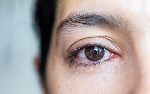 bacterie yeux