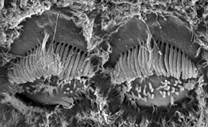 Aerial surface view of two neighbouring hair cells in the inner ear © IRCM On the surface of these developing mouse cells, large stereocilia can be noticed forming a V-shaped brush pointing upwards. The visualization technique used to capture this image is scanning electron microscopy, which allows us to see the morphology of the cell surface at high resolution.